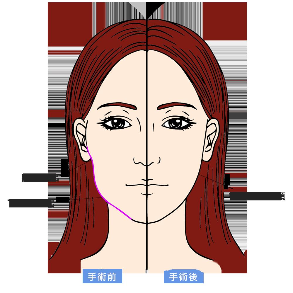 正式_臉部對比