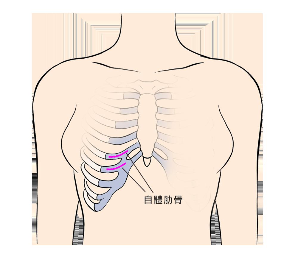 正式_自體勒骨位置 (1)
