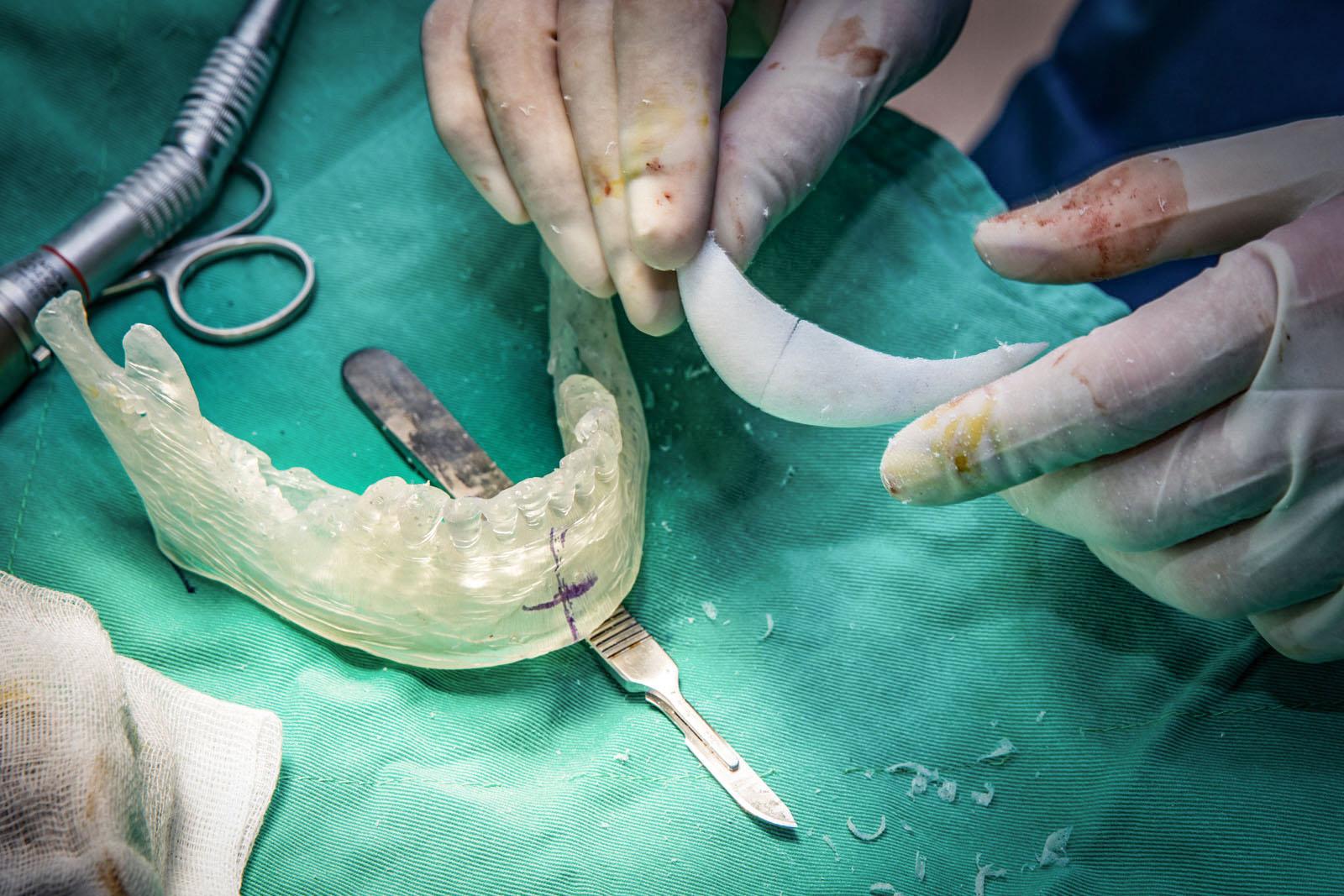 手術切口與骨釘上鎖後的示意圖