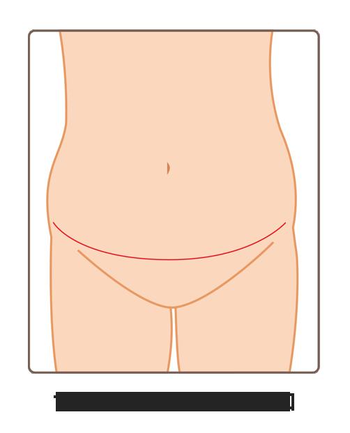 腹直肌修復01A