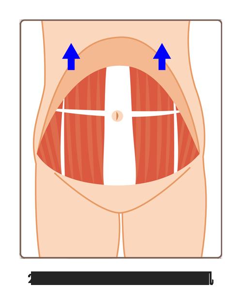 腹直肌修復02A