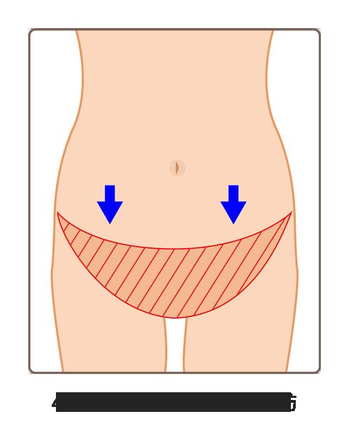 腹直肌修復04A