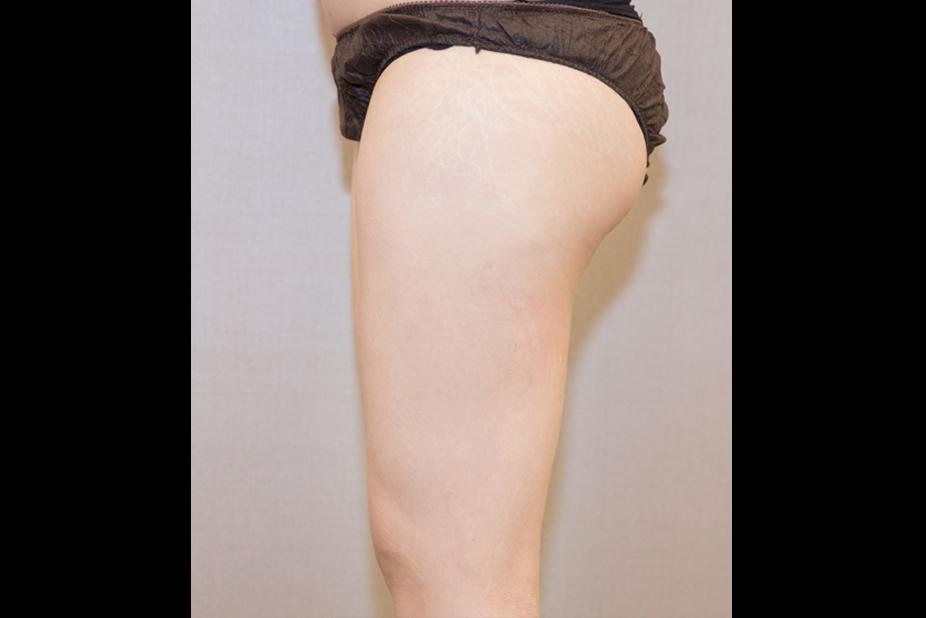 大腿抽脂-201905-2