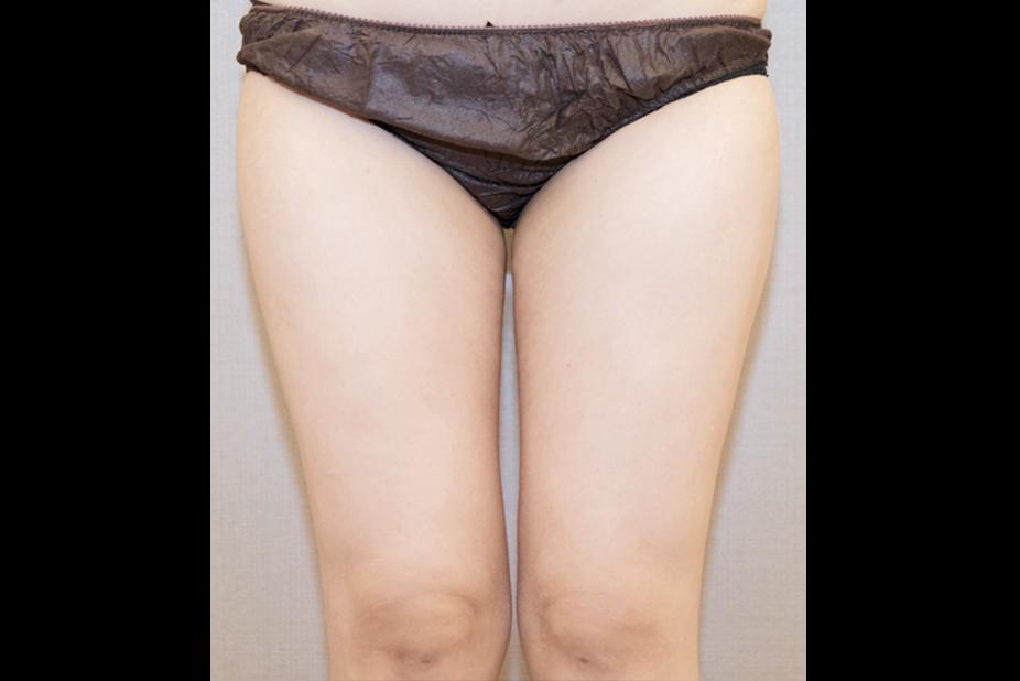 大腿抽脂-201905-4