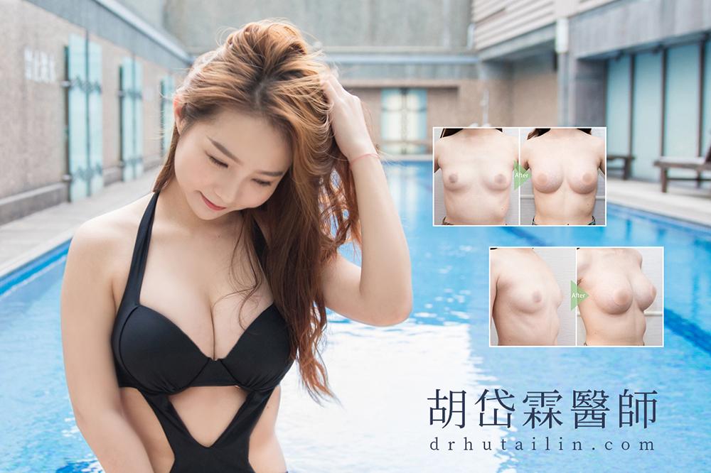 胡岱霖醫師隆乳圖