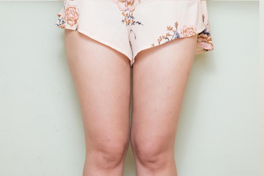 大腿抽脂-201904-1