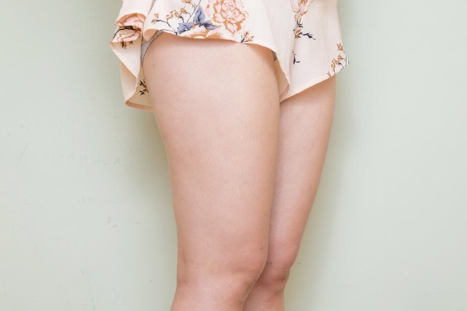 大腿抽脂-201904-A1
