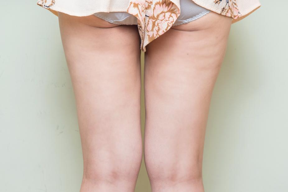 大腿抽脂-201904-B1